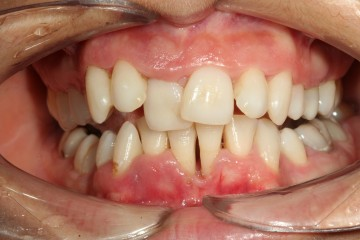 Boala parodontala-Timisoara
