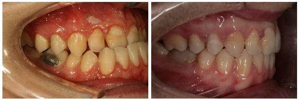 Tratament prin interventie chirurgicala maxilar Le Fort- chirurgie ortognata