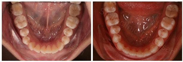 Aliniere dentara mandibula