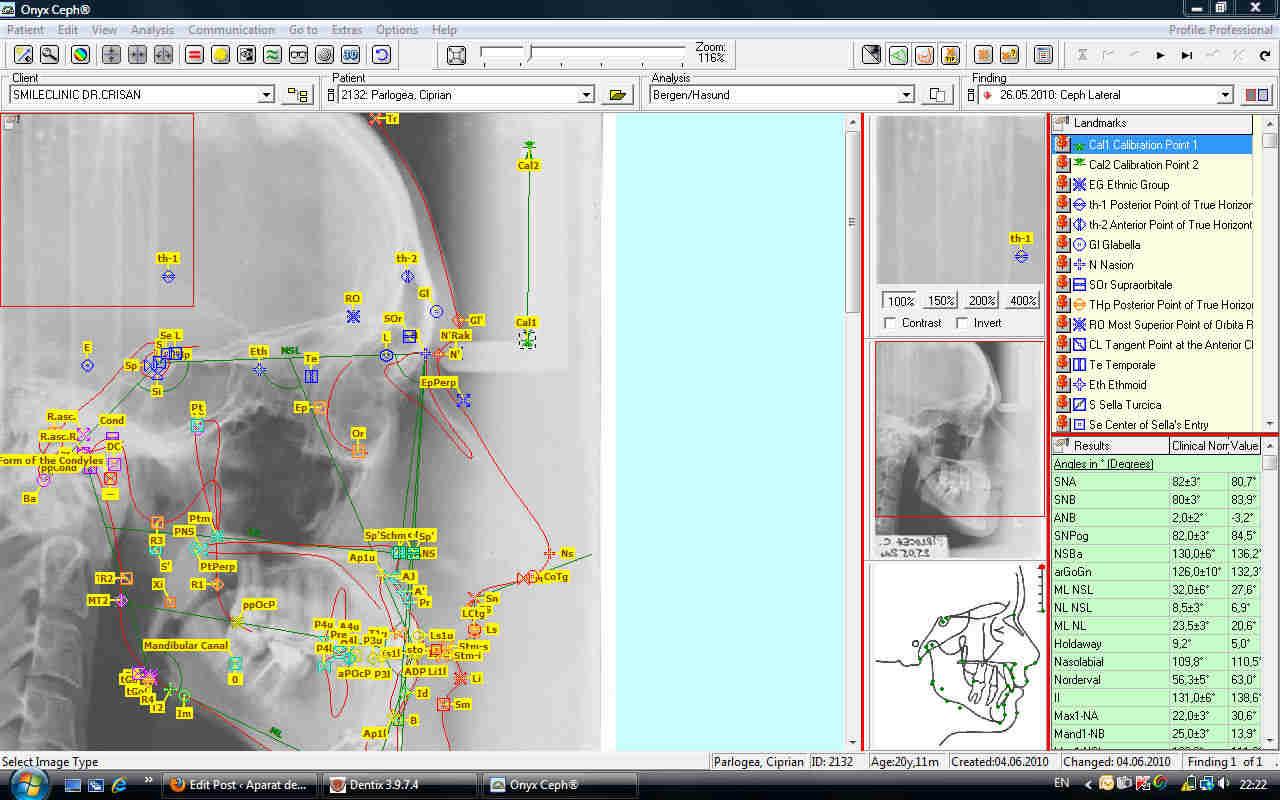 Analiza teleradiografiei pentru diagnosticul  in ortodontie