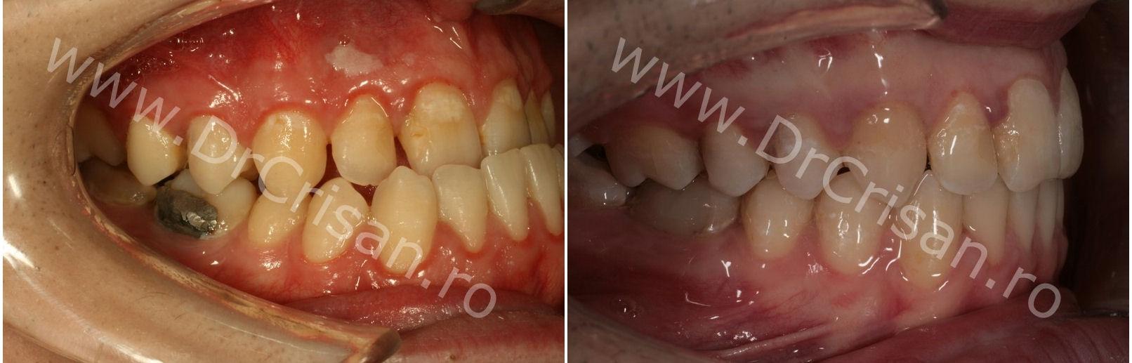 Fotografie ocluzie dreapta inainte si dupa tratamentul ortodontic