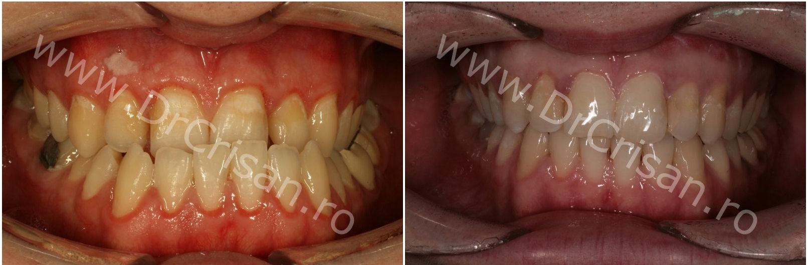 Inainte si dupa tratamentul ortodontic