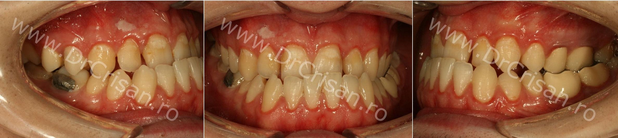 Interventie chirurgicala pacient cu aparat ortodontic Smileclinic DrCrisan