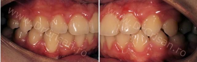 Fotografie intraorala dupa demontarea aparatului dentar