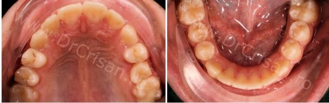 Fotografie arcade dentare