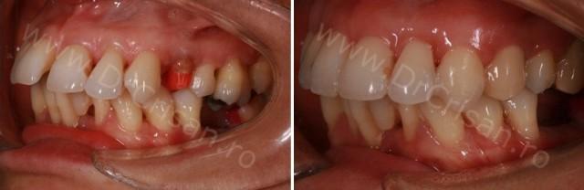 Tratament mixt parodontal si ortodontic