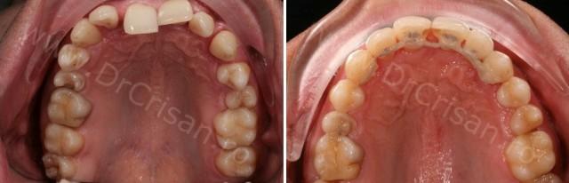 Imagine maxilar inainte si dupa tratament