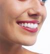 Aparat ortodontic fix lingual