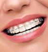 Aparatul dentar din ceramica